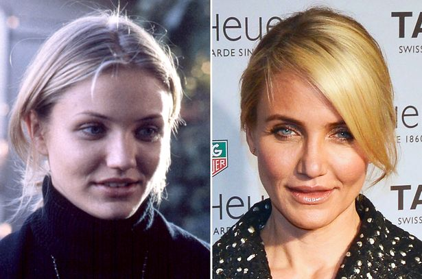 Cameron-Diaz-before-and-after-nose-surgery