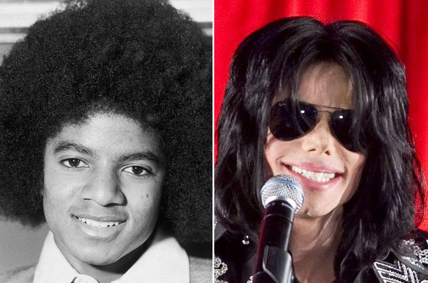 Michael-Jackson-before-and-after-nose-surgery