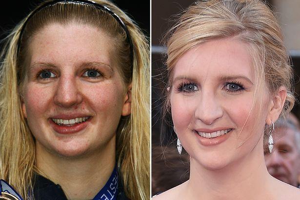 Rebecca-Adlington-nose-job